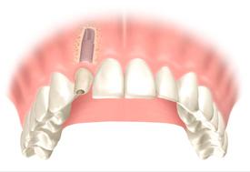 implantologia-02