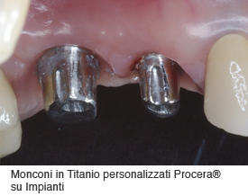 implantologia-03