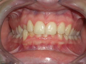 ortodonzia-classica-01