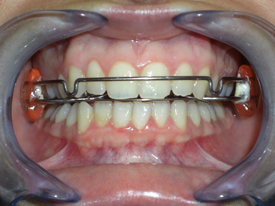 ortodonzia-classica-02