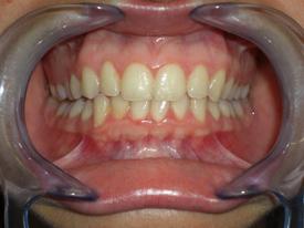 ortodonzia-classica-03
