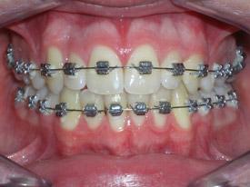 ortodonzia-classica-06