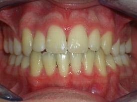ortodonzia-classica-07