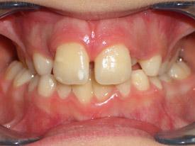 ortodonzia-classica-08